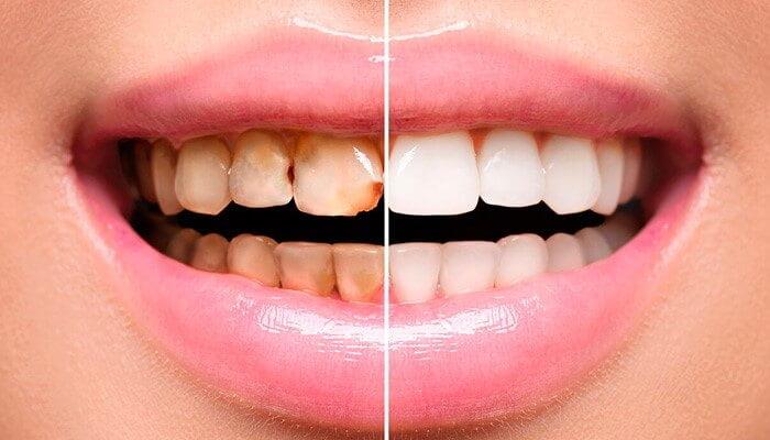 Что такое реставрация (восстановление) зубов - 3 | Complex Dent