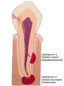 Что такое периодонтит? - 2 | Complex Dent