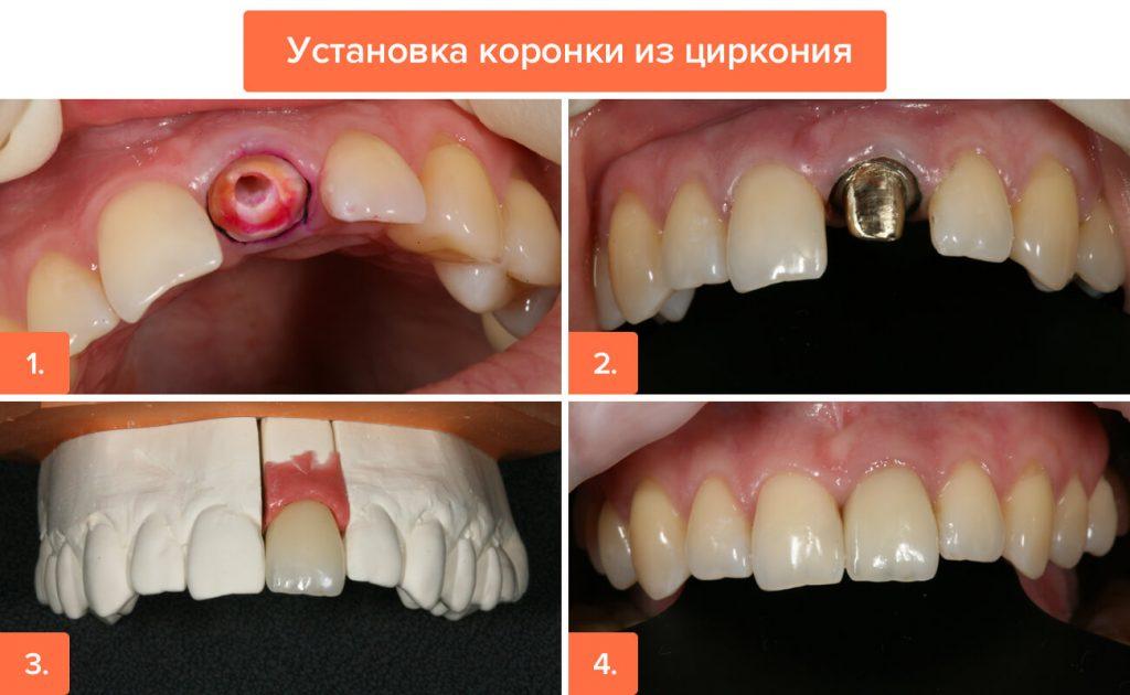 Услуги / Все виды протезирования/ Циркониевые коронки - 2 | https://complex-dent.com.ua