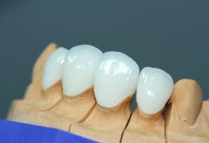 Современная ортопедическая стоматология. Идеальное восстановление зубов - 1 | Complex Dent