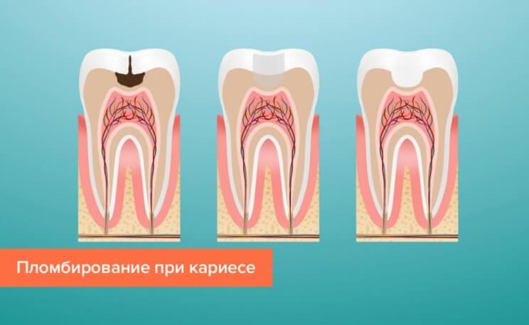 Процесс пломбирование зубов - 1 | Complex Dent