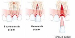 Шатаются зубы. Что делать? - 1 | Complex Dent