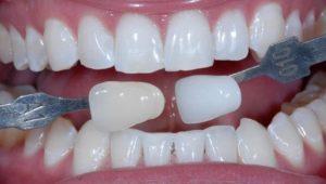 Отбеливание эмали | Complex Dent