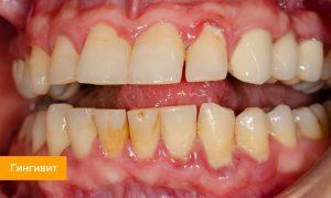 Воспаление десен: причины и лечение - 2 | Complex Dent