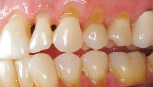 Клиновидный дефект | Complex Dent