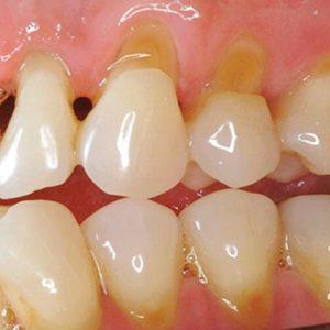 Стоматологическая Клиника Complex Dent - 23 | https://complex-dent.com.ua