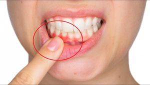 Воспаление десен: причины и лечение | Complex Dent