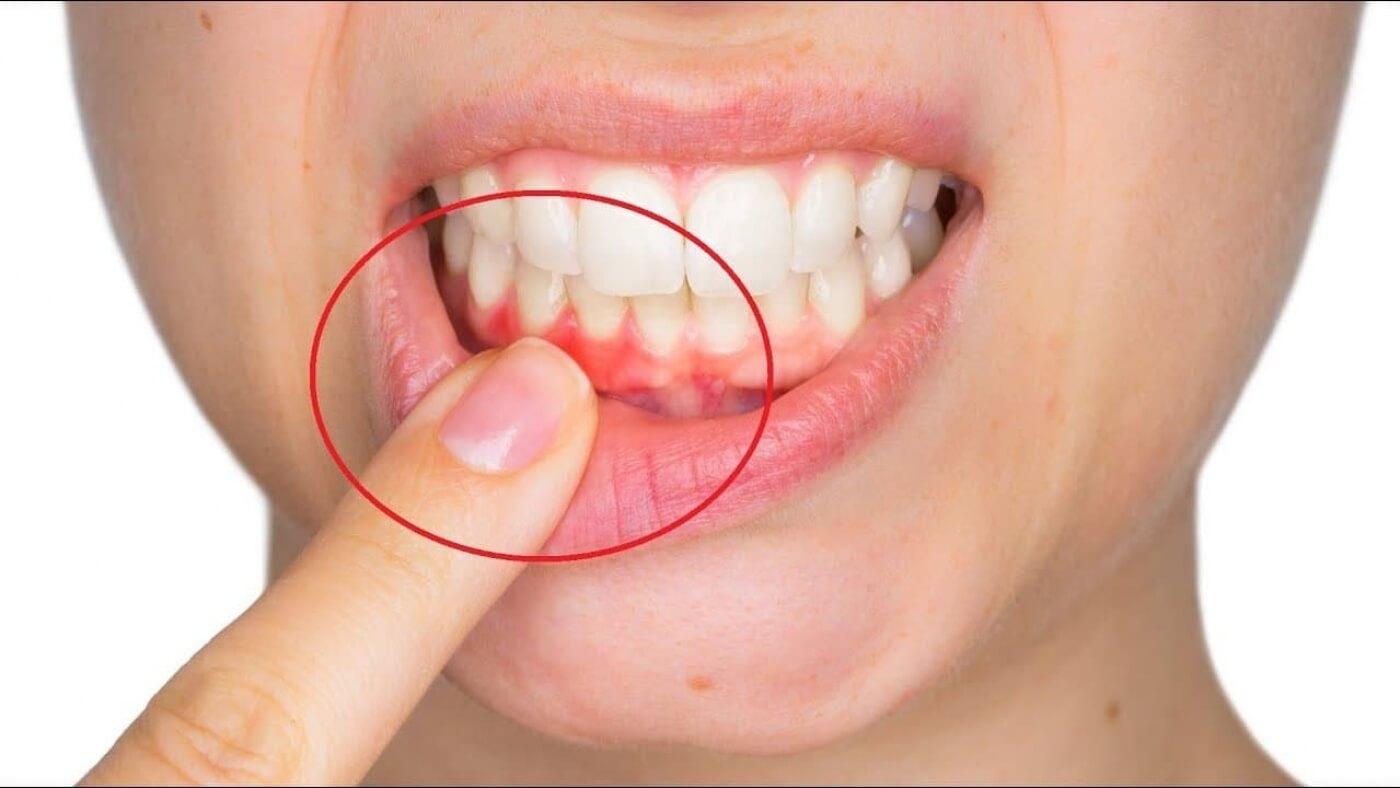 Блог клиники Complex Dent / Воспаление десен: причины и лечение | https://complex-dent.com.ua