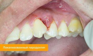 Воспаление десен: причины и лечение - 3 | Complex Dent