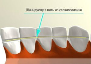 Шатаются зубы. Что делать? - 3 | Complex Dent