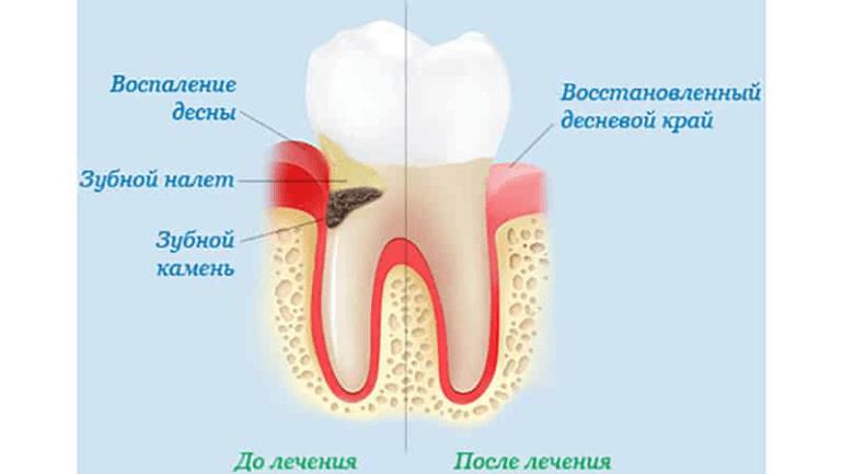 Воспаление десен: причины и лечение - 1 | Complex Dent
