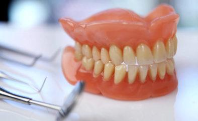 Съемные зубные протезы | https://complex-dent.com.ua