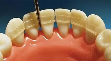 Шинирование зубов - 1 | https://complex-dent.com.ua