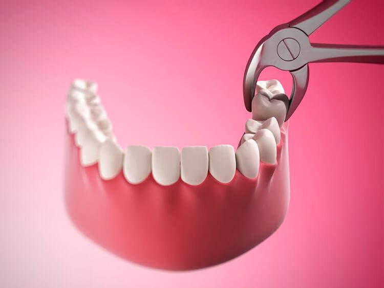 Услуги / Хирургическая стоматология/ Удаление зуба   https://complex-dent.com.ua