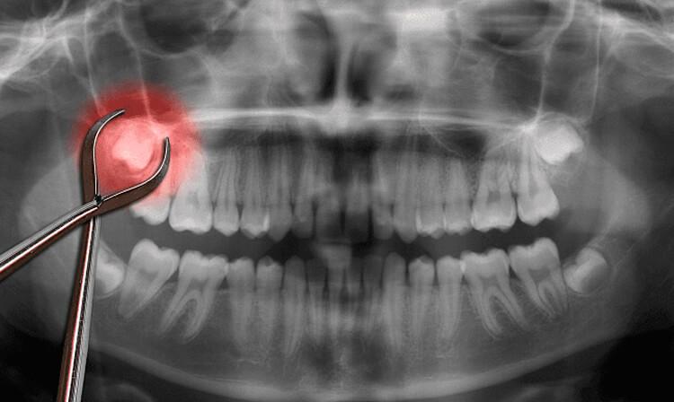 Удаление верхнего зуба мудрости | https://complex-dent.com.ua