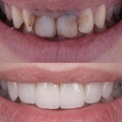 Результаты работ стоматологической клиники Complex Dent — фото 1