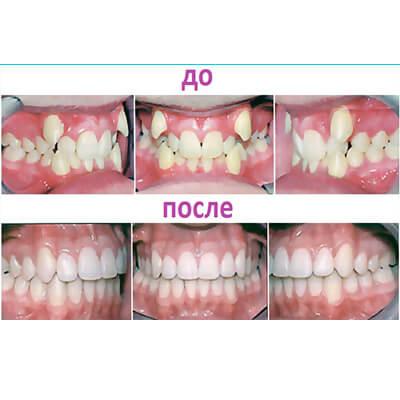 Результаты работ стоматологической клиники Complex Dent — фото 10