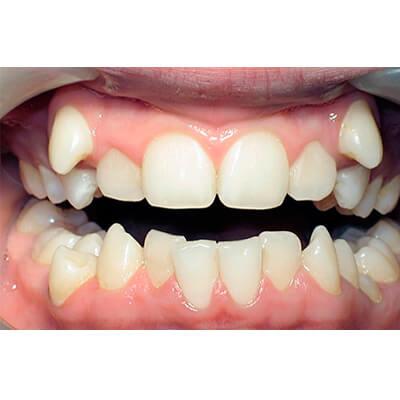 Результаты работ стоматологической клиники Complex Dent — фото 11