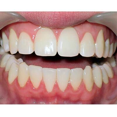 Результаты работ стоматологической клиники Complex Dent — фото 12