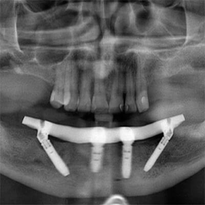 Результаты работ стоматологической клиники Complex Dent — фото 14