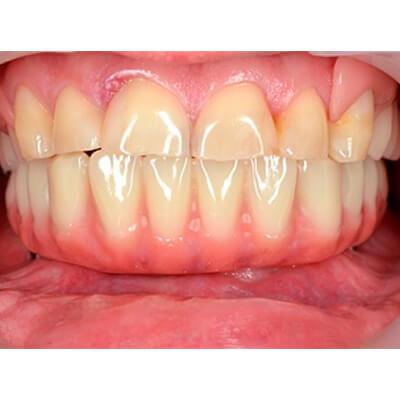 Результаты работ стоматологической клиники Complex Dent — фото 15