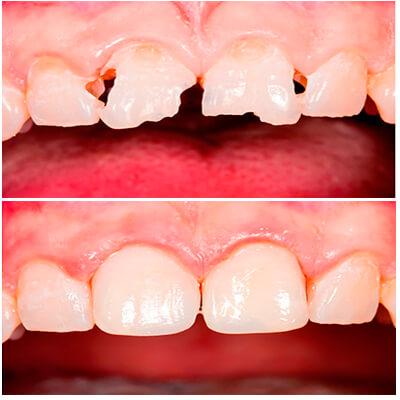 Результаты работ стоматологической клиники Complex Dent — фото 2