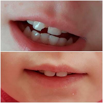 Результаты работ стоматологической клиники Complex Dent — фото 21