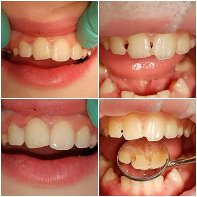 Результаты работ стоматологической клиники Complex Dent — фото 22