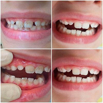 Результаты работ стоматологической клиники Complex Dent — фото 23
