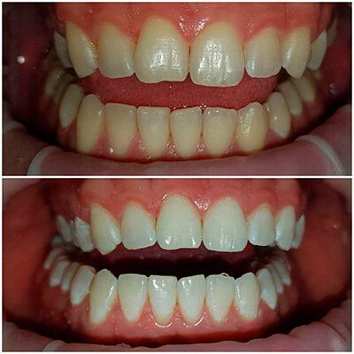 Результаты работ стоматологической клиники Complex Dent — фото 26