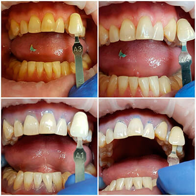 Результаты работ стоматологической клиники Complex Dent — фото 27