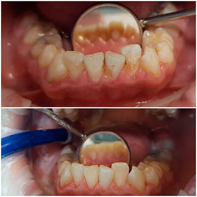 Результаты работ стоматологической клиники Complex Dent — фото 28