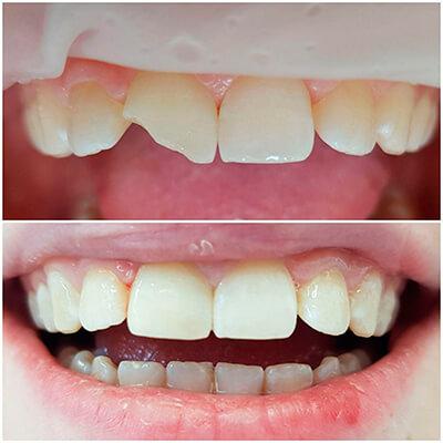 Результаты работ стоматологической клиники Complex Dent — фото 3
