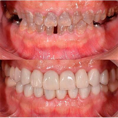 Результаты работ стоматологической клиники Complex Dent — фото 30