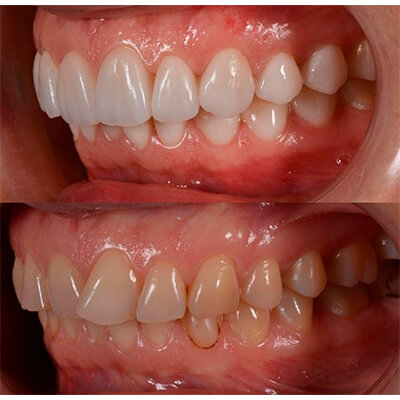 Результаты работ стоматологической клиники Complex Dent — фото 32