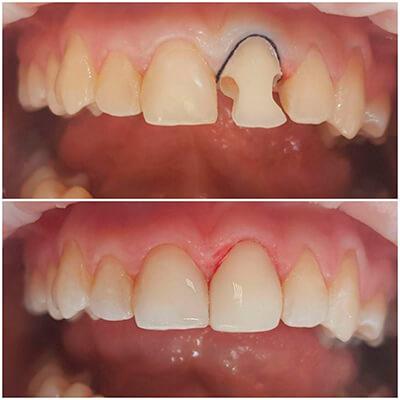 Результаты работ стоматологической клиники Complex Dent — фото 4