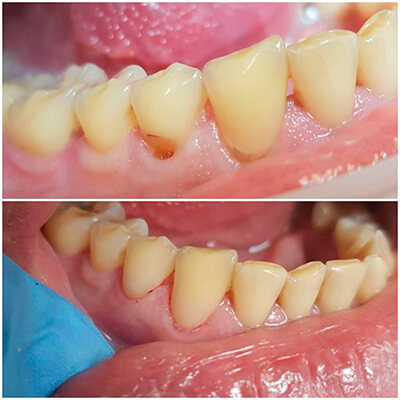 Результаты работ стоматологической клиники Complex Dent — фото 5