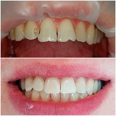 Результаты работ стоматологической клиники Complex Dent — фото 7