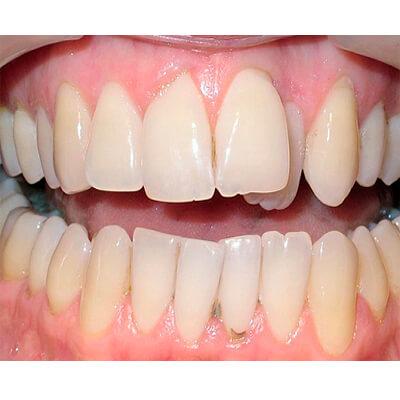 Результаты работ стоматологической клиники Complex Dent — фото 8