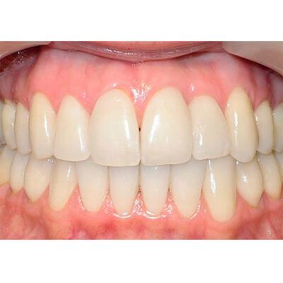 Результаты работ стоматологической клиники Complex Dent — фото 9