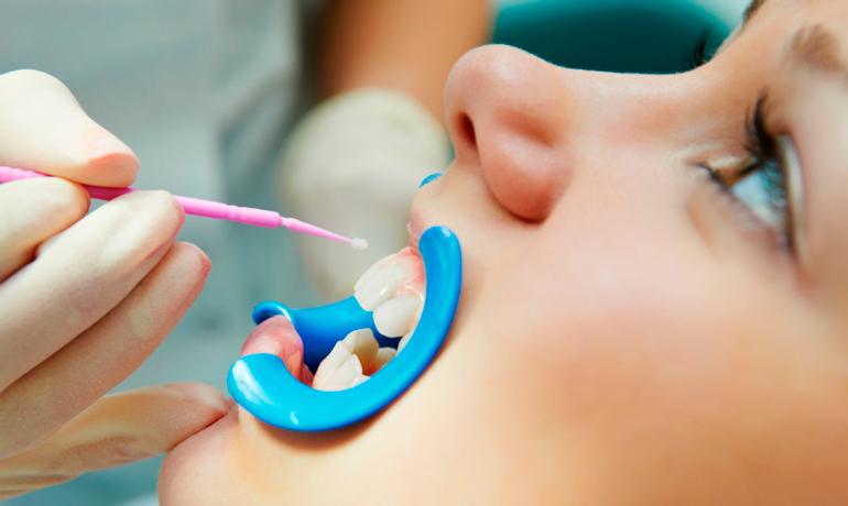 Профессиональная чистка зубов у детей | https://complex-dent.com.ua