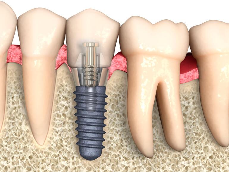 Имплантация зубов | https://complex-dent.com.ua