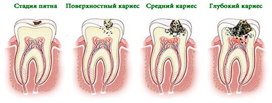 Лечение кариеса постоянных зубов у детей - 2 | https://complex-dent.com.ua