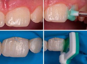 Лечение кариеса молочных зубов у детей - 3 | https://complex-dent.com.ua