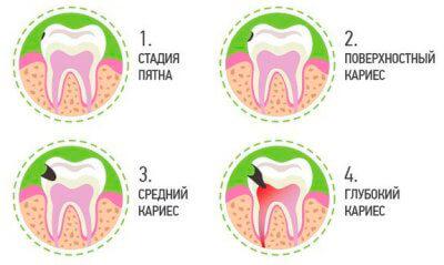 Лечение кариеса молочных зубов у детей - 1 | https://complex-dent.com.ua