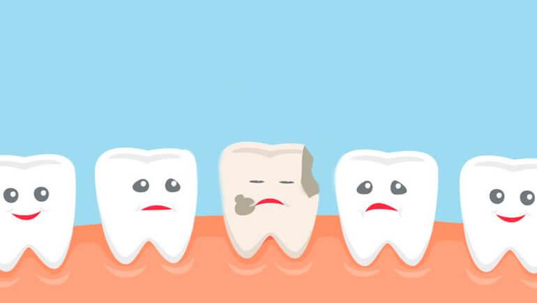 Лечение кариеса молочных зубов у детей | https://complex-dent.com.ua