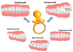 Детская ортодонтия- 2 | https://complex-dent.com.ua