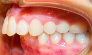 Детская ортодонтия- 3 | https://complex-dent.com.ua