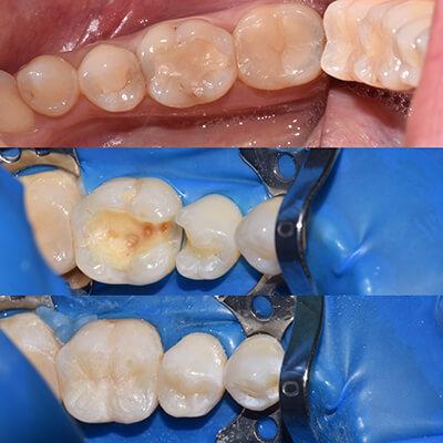 Результаты работ стоматологической клиники Complex Dent — фото 40