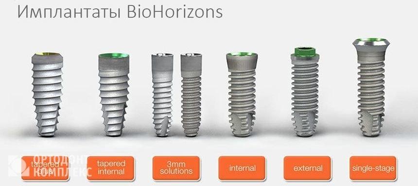 Установка имплантов BioHorizons | https://complex-dent.com.ua